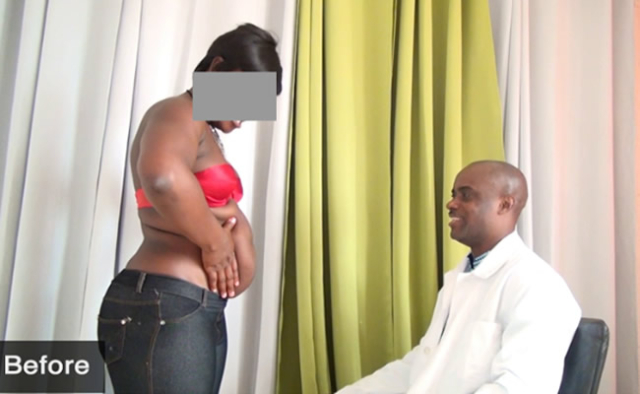 Dr Obengfo (right) examining one of his clients before liposuction